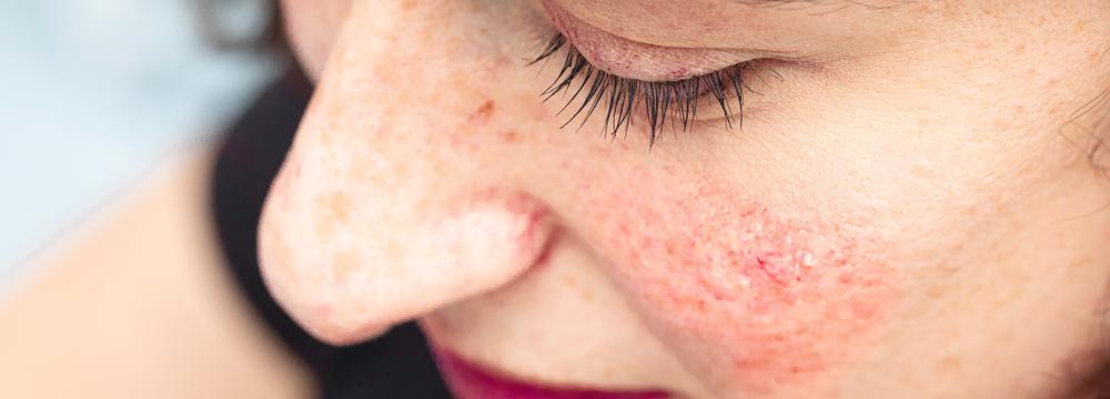 Nepříjemné svědivé pupínky na obličeji možná značí růžovku. Co to je a jak jí léčit?