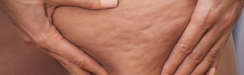 Celulitida – zabírá na ni jen jediná věc, kterou ani nemusíte kupovat