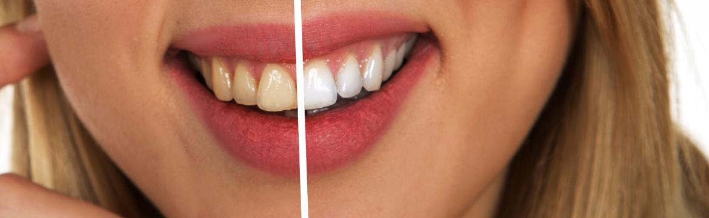 Zdá se vám, že máte žluté zuby? Možná se dopouštíte těchto 6 chyb