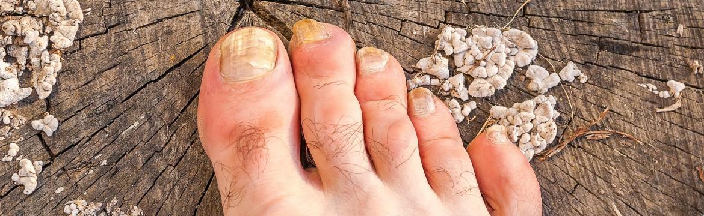 Plísně na nohou mohou vést až k deformaci nehtů. Co na ně zabírá?