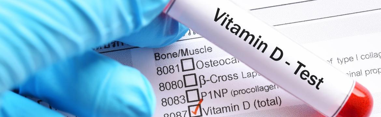 Vitamín D v zimě: Jak poznáme, že nám chybí a můžeme si nechat jeho hladinu zjistit?