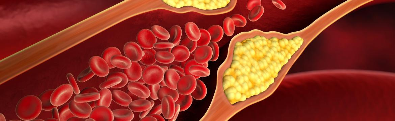 Zbraně proti vysokému cholesterolu: hlíva ústřičná i shiitake