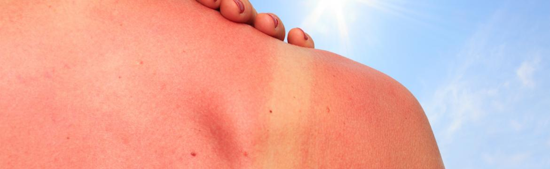 Jaká různá rizika představuje sluneční záření?