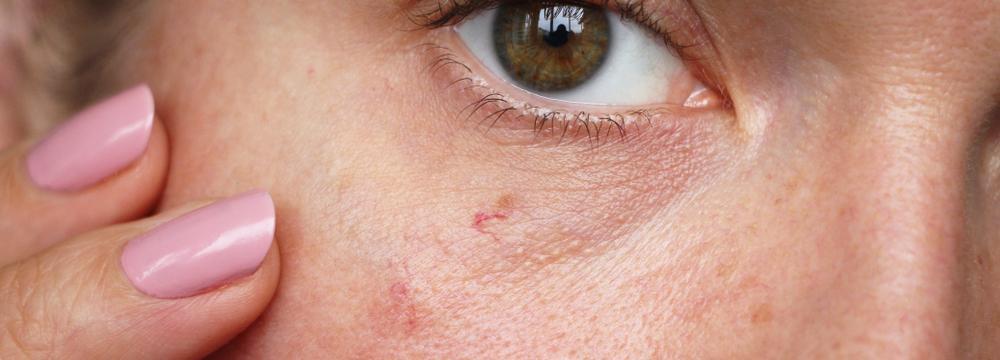 Nepříjemné červené žilky v obličeji a dekoltu – jak se zachovat, když se objeví?
