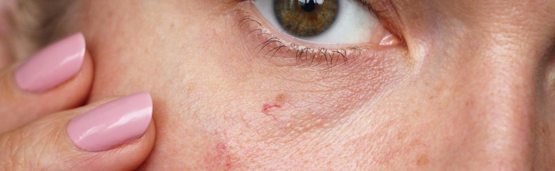 Co pomáhá na popraskané žilky v obličeji a jak je zamaskovat?