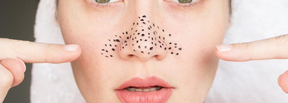 Péče o pokožku, kterou trápí rozšířené a ucpané póry: fígl je v použití účinných látek