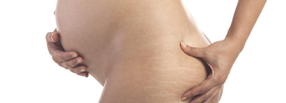 Jak účinně v těhotenství předejít tvorbě strií?