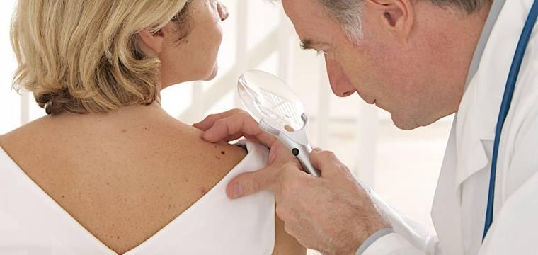 Pravidlo ABCDE: Naučte se ho, pomůže vám včas odhalit nebezpečí rakoviny kůže