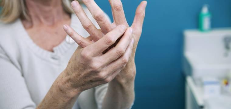 Vyzkoušejte jednoduché cviky, které vám pomohou zmírnit příznaky artritidy