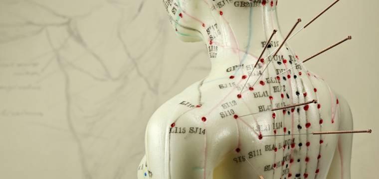 Akupunktura – napichování jehličkami nemusí bolet a může pomoci, když jiné přístupy selhávají