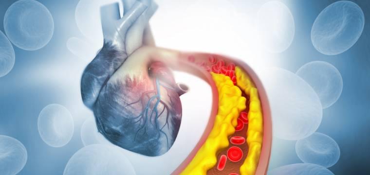 Strašák cholesterol: kdy můžete zachovat klid a kdy se začít bát?
