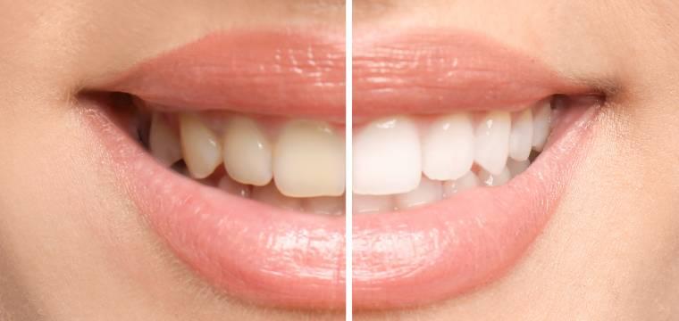 Jaké návyky způsobují žloutnutí zubů? Možná budete překvapeni